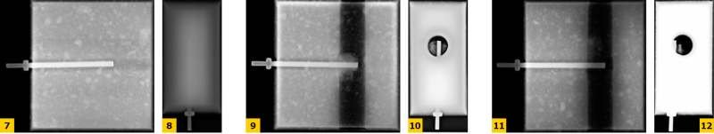 FOT. 7–12. Radiogramy pionowe i poziome zakotwienia pręta stalowego w drążonym bloku wapienno-piaskowym: w części pełnościennej, w środku otworu pionowego, na krawędzi otworu pionowego, uzyskane na podstawie pomiarów przy użyciu aparatu rentgenowskiego